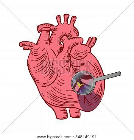 Myocardial Infarction Heart Disease Medicine Education Diagram Vector Scheme Human Hand Draw Vector