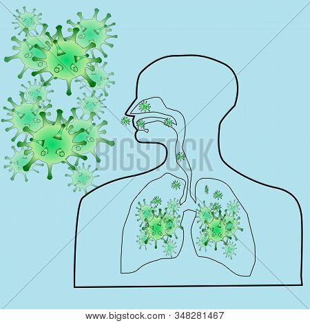Coronavirus Concept With A Human Familiar And The Virus Enters The Lungs Vector Design