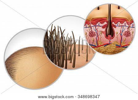Hair Loss Diagram And Baldness Or Bald Head Hair Loss As A Receding Hairline Cosmetic Follicle Thinn