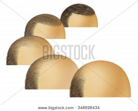 Stages Of Baldness And Bald Head Hair Loss As A Receding Hairline Cosmetic Follicle Thinning And Alo