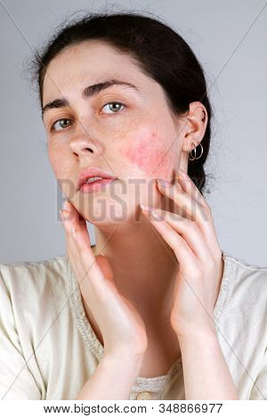 Portrait Of A Young Caucasian Woman Showing Redness And Inflamed Blood Vessels On Her Cheeks. Gray B