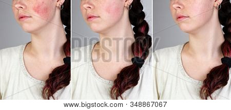 A Series Of Images Of A Young Caucasian Womans Face Showing Redness And Inflamed Blood Vessels On He
