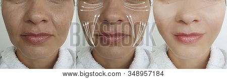 Woman Face Before And After Tightening, Wrinkles