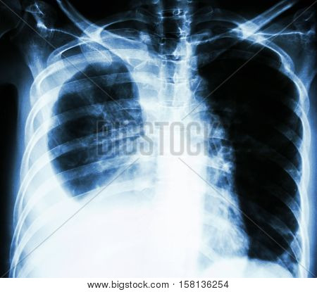film chest X-ray PA upright : show pleural effusion at right lung due to lung cancer