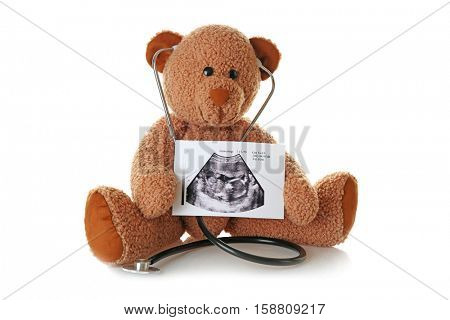 Teddy bear with ultrasound scan of baby and stethoscope on white background