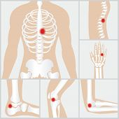 Disease of the joints and boneshuman joints knee joint elbow joint ankle joint wrist skeletal spinal bone structure of Human Spine medical healthcare flat vector illustration. poster