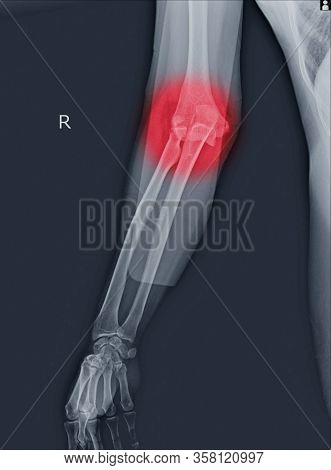 X-ray Elbow Dislocations And Fracture On Red Point.radial Head Fractures Are Among The Most Common E