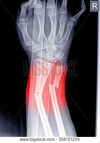 X-ray Image Right Of Wrist Joint, Shows Fracture Of The Distal Radius And Ulna On Color Mark.