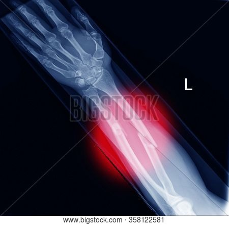 Xray Image Showing Fracture Radius And Ulna Soft Tissue Swolling On Red Coloe Mark.healthcare Concep