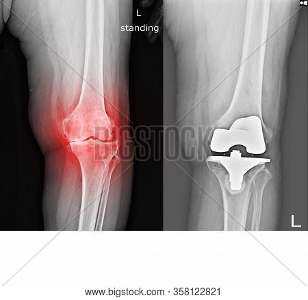 X-ray Of The Left Knee That Has Osteoarthritis And Bone Regeneration, Causing Pain And Swelling When