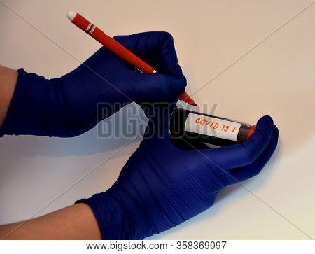Test For The Novel Coronavirus Or Covid - 19