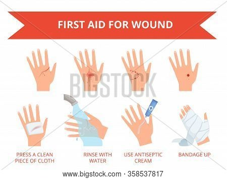 Wound Skin Treatment. First Emergency Help For Human Hand Trauma Injuries Dressing Bandage Bleeding