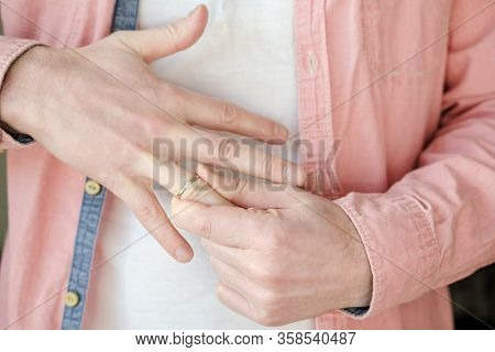 Man Takes Off A Golden, Engagement Ring From His Finger. Concept Of Family Quarrel, Divorce Or Treas