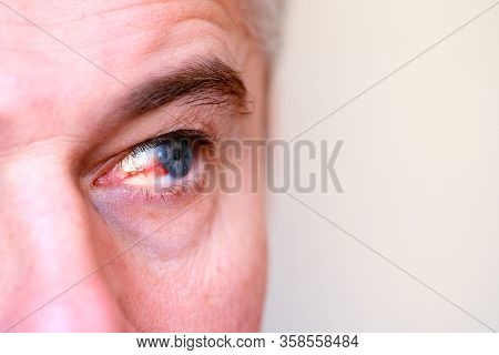 Eye Injury. Ophthalmology, Burst Capillary Of The Eye