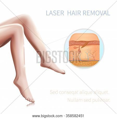 Medical Infographics Woman Hairless Smooth Silk Legs, Cross Section View Of Human Skin With Damaged