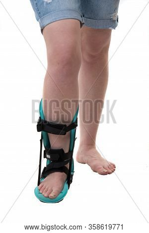 Close Up Of Leg Of Woman In Feet Night Orthosis Isolated On White Background