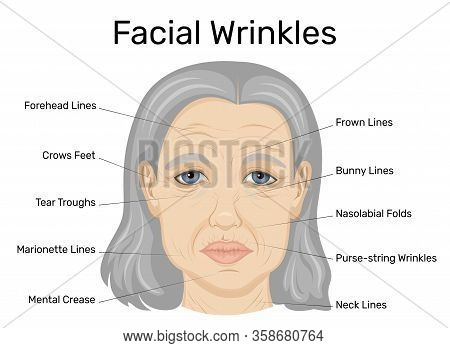 Illustration Of Types Of Wrinkles On The Face Of An Old Woman