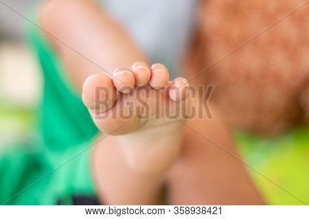 Baby Feet And Toes Have Scars On The Toes