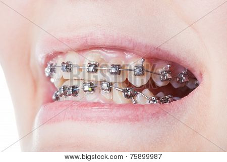 Dental Steel Brackets On Teeth Close Up