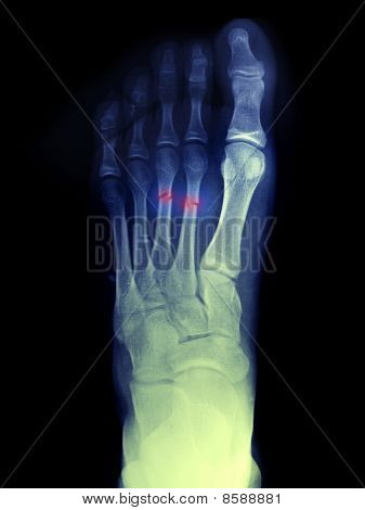 Foot X-ray Of A 14 Year Old Boy Who Fractured His 2Nd And 3Rd Metatarsals
