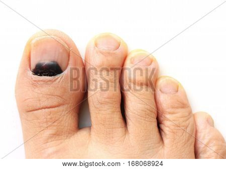 Bruise on Big Toe Nail one month after the accident