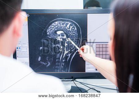 Doctors Consider And Discuss Magnetic Resonance Image (mri) Of The Brain. Back View, Selective Focus