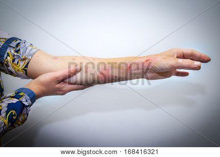 Skin Burns On Human Arm