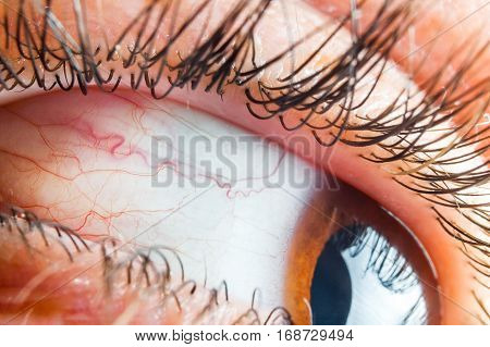 Medicine healthcare blood capillary human eye conjunctivitis closeup.