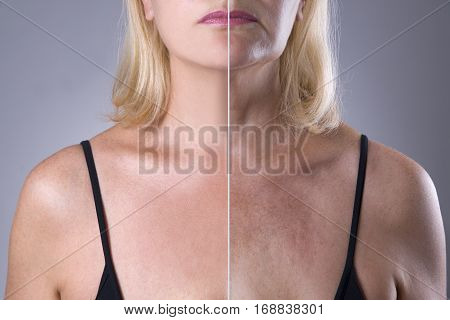 Rejuvenation woman's skin before after anti aging concept wrinkle treatment facelift and plastic surgery half of body on gray background