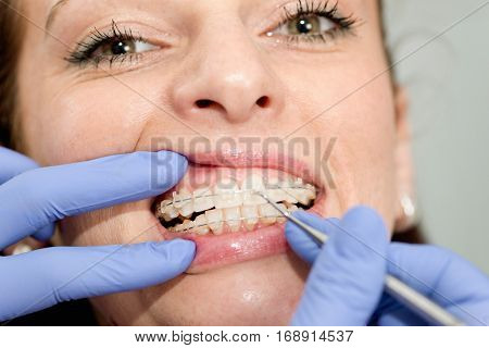 Orthodontist Tightening Braces