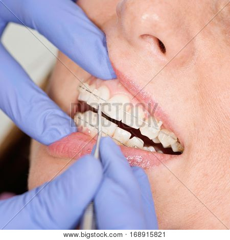 Orthodontist tightening invisible ceramic braces, color image
