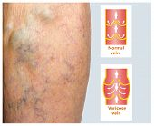 Varicose veins on a female senior legs. The structure of normal and varicose veins poster