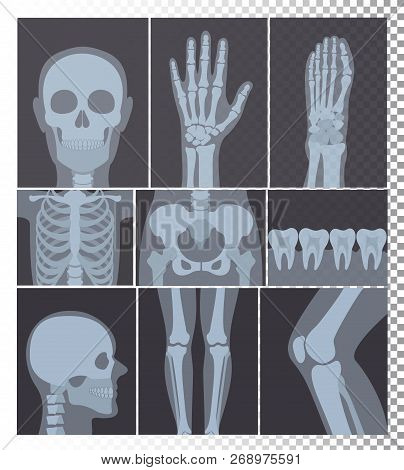 Vector Illustration Of Realistic X-rays Shots Collection. X-ray Pictures Of Head, Bones, Teeth Set,