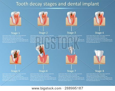 Tooth Decay Stages And Dental Implant Vector Illustration