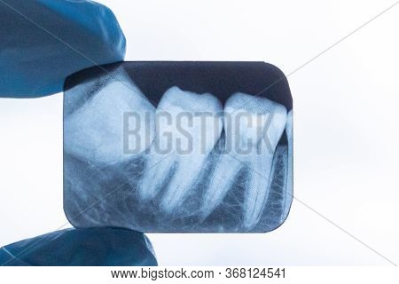 Gloved Dentist Surgeon Holds X-ray Of Lower Retarded Wisdom Tooth