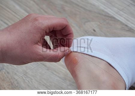 Water Corns On Heels Of A Woman In White Socks, Rub The Calluses With New Shoes. Grated Bloody Blown