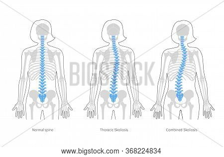 Woman Scoliosis Flat Vector Illustration. Types Of Scoliosis Of Spine Infographics. Diagram With Spi