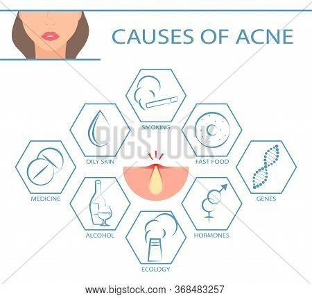 Skin Problems Infographic.  Acne 2