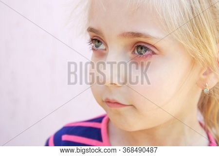 Close Up Of A Girl With Conjunctivitis .
