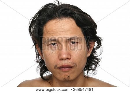 Facial Close Up: Asian Men Aged 35-40 Years With Wrinkles Crows Feet, Lack Of Skin Care