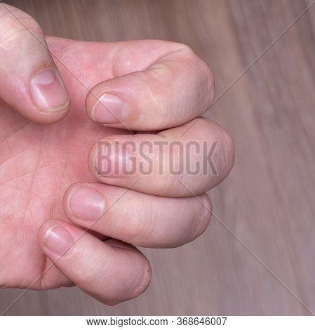 Close-up Of Short Dirty Nails, Caucasian Male Hand. Problematic Nails, Untreated Natural Nails, Male
