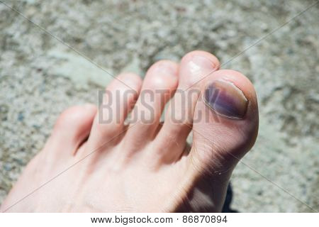 caucasian foot with blue big toe and nail after accident