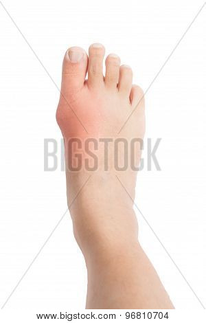 Foot with deformed right toe due to painful gout inflammation.