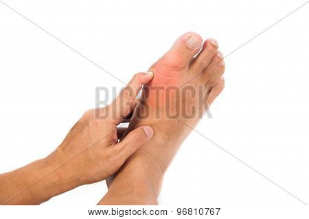 Pair of feet with deformed right toe due to painful gout inflammation.