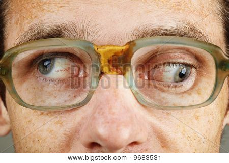 Strabismus - Eye Closeup