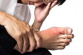 Man with painful and inflamed gout on his foot around the big toe area. poster