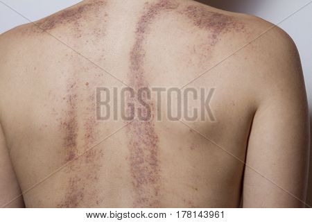 Rear View Of A Woman With Bruises On White Background.