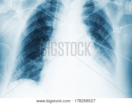 Medical x-ray image with space for your text.