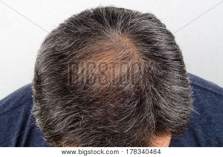 hair loss and grey hair Male head with hair loss symptoms