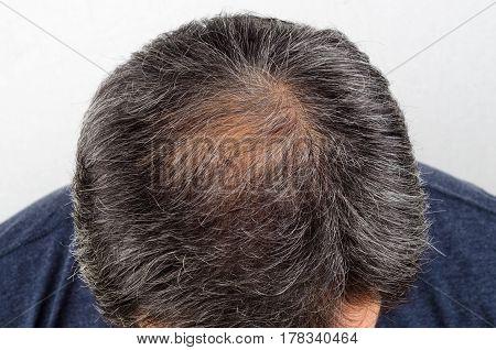 hair loss and grey hair Male head with hair loss symptoms